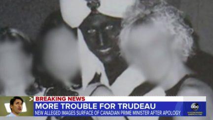 Justin Trudeau Joins Long List of Celebs in Blackface