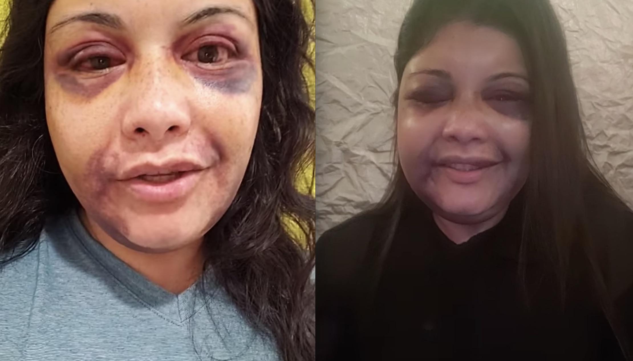 Vanessa Tijerina after hotel attack